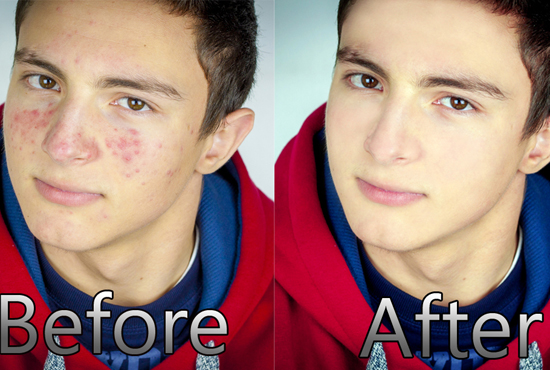 I will do 2 image skin retouching